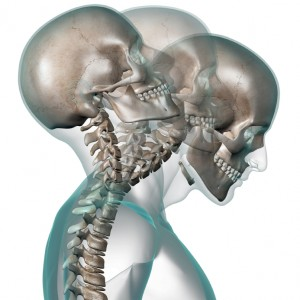 Auto Accident Chiropractor Salem